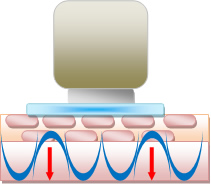 超音波の効果